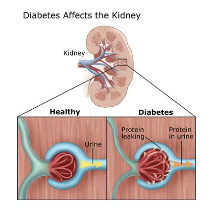 nephropathy kidney