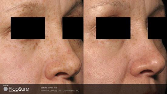 ba-freckles