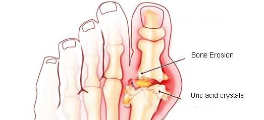 gout-pain