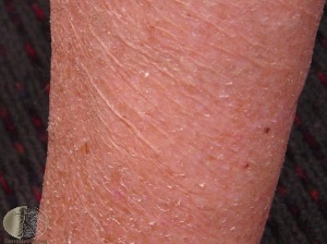 Alligator Skin (severe dry skin) found in hypothyroidism