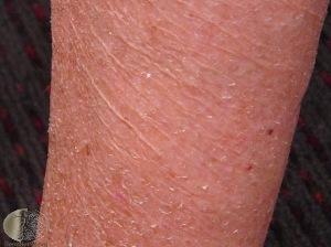 Alligator Skin (severe dry skin) found in hypothyroidism