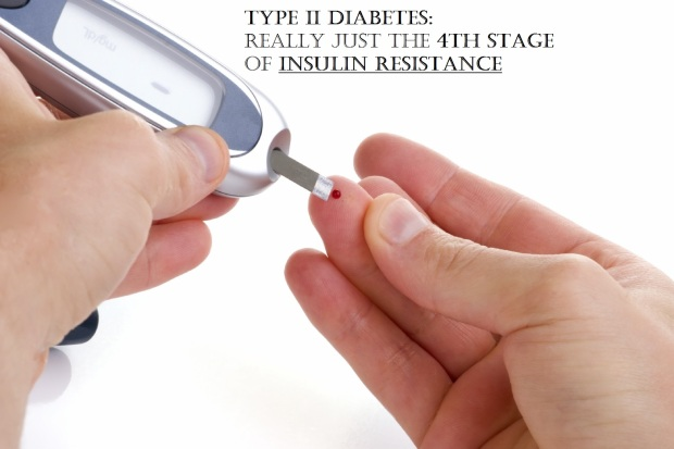 Type II Diabetes: Really Just the Fourth Stage of Diabetes